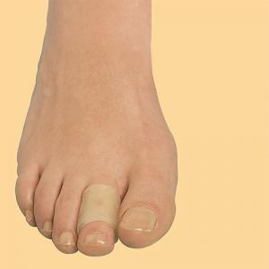 Защитное гелевое кольцо для деформированных пальцев стопы